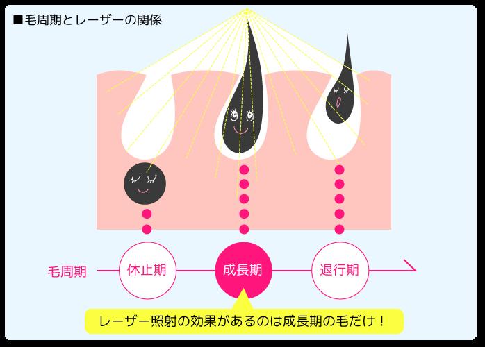 レーザー脱毛効果の仕組み