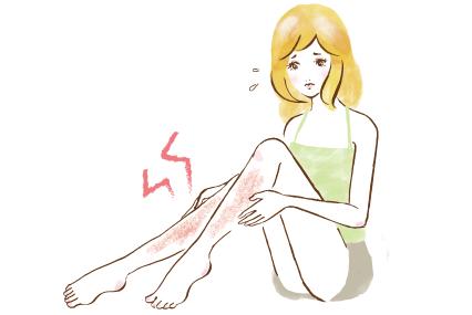足が赤く炎症を起こした女性
