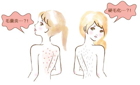 毛嚢炎と硬毛化に悩む女性