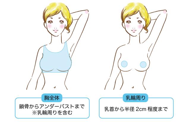 胸・乳輪周り脱毛の範囲