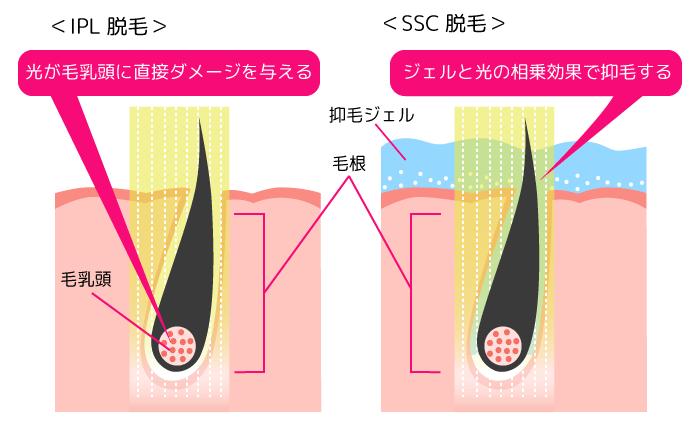 IPL脱毛とS.S.C脱毛の仕組み