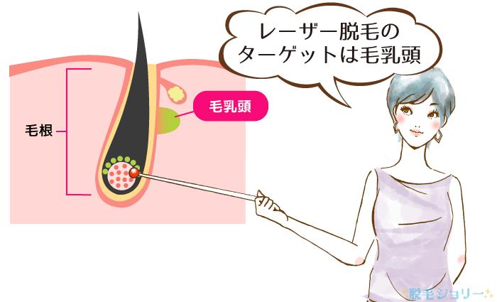 レーザー脱毛の仕組みについて説明