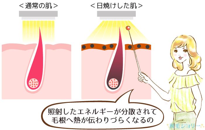 通常の肌と日焼けした肌に脱毛をする図