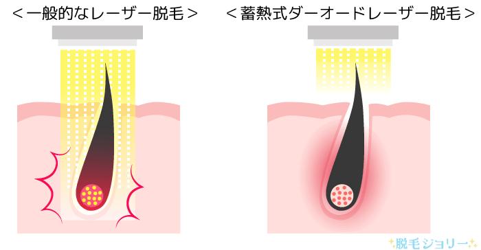一般的なレーザー脱毛と蓄熱式脱毛の違い