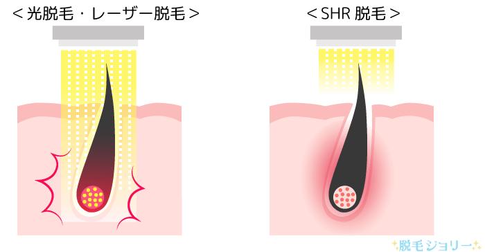 レーザー脱毛と蓄熱式ダイオードレーザーの違い