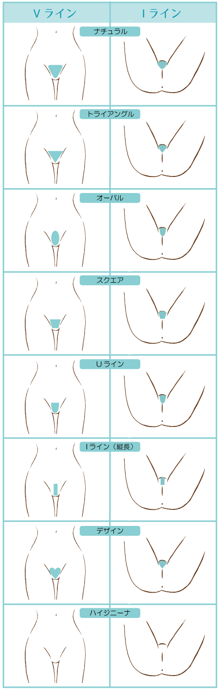 Vラインの形とIラインの形の一覧