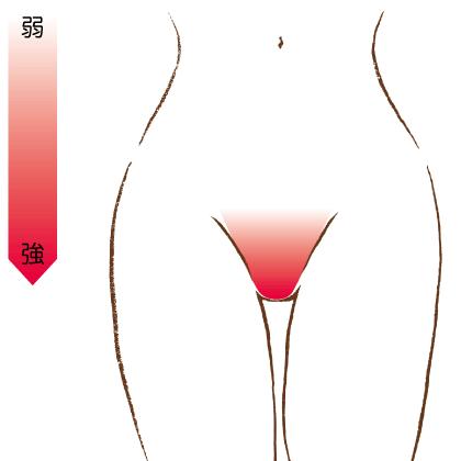 Vラインの痛みの強さを表すイラスト