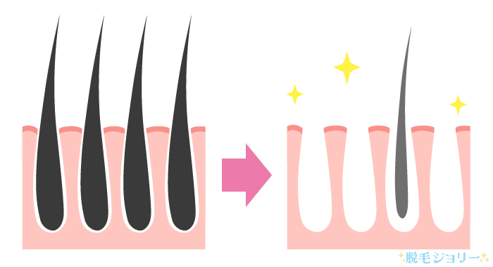 医療脱毛クリニックの脱毛効果