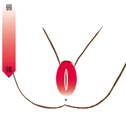 Iラインの痛みを表すイラスト
