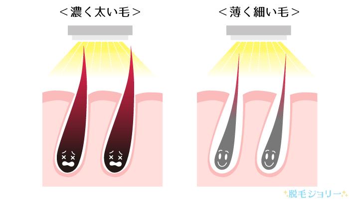 濃い毛と薄い毛の脱毛効果