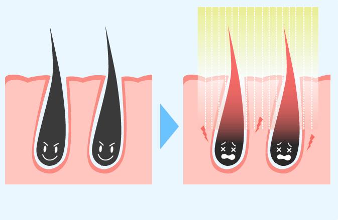 脱毛の仕組み