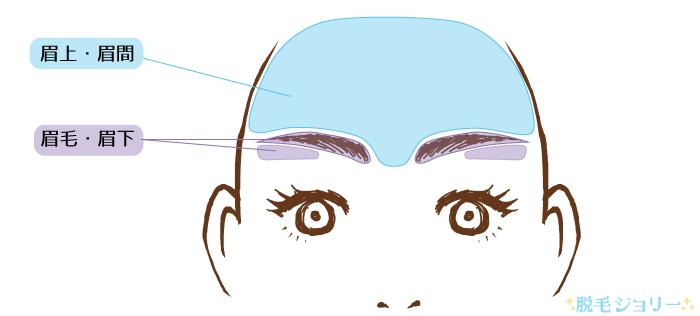 眉毛や眉間など眉周りの脱毛範囲
