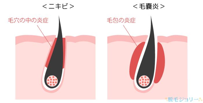 ニキビと毛嚢炎の違い
