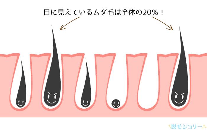 脱毛に効果があるムダ毛は全体の2割程度