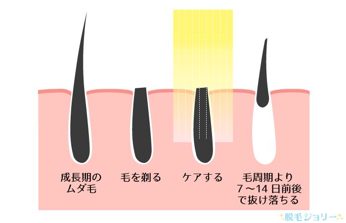 脱毛の効果と仕組みについて