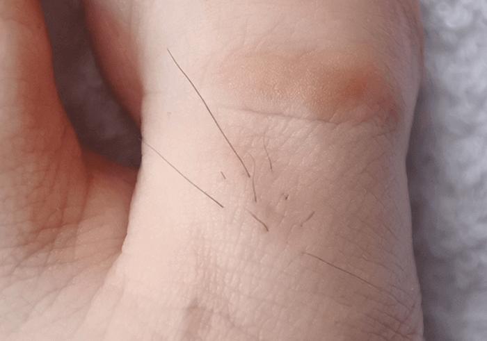 脱毛前の足指のムダ毛