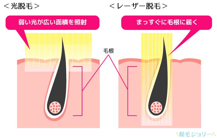 光脱毛とレーザー脱毛の性質の違い