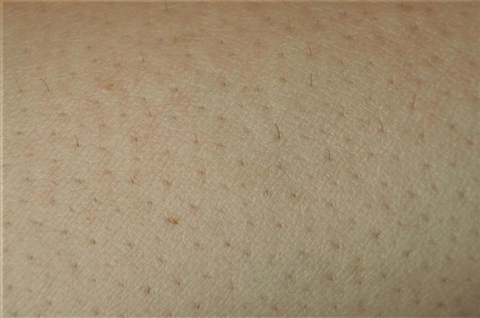 トリアパーソナルレーザー脱毛器4Xによる腕脱毛1回目(2週間後)
