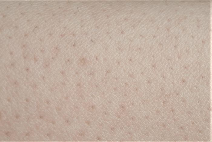 トリアパーソナルレーザー脱毛器4Xによる腕脱毛2回目(1ヶ月後)