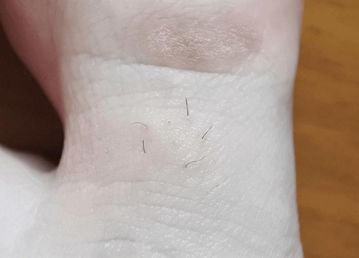 トリアパーソナルレーザー脱毛器4Xによる足指脱毛2回目(1ヶ月後)