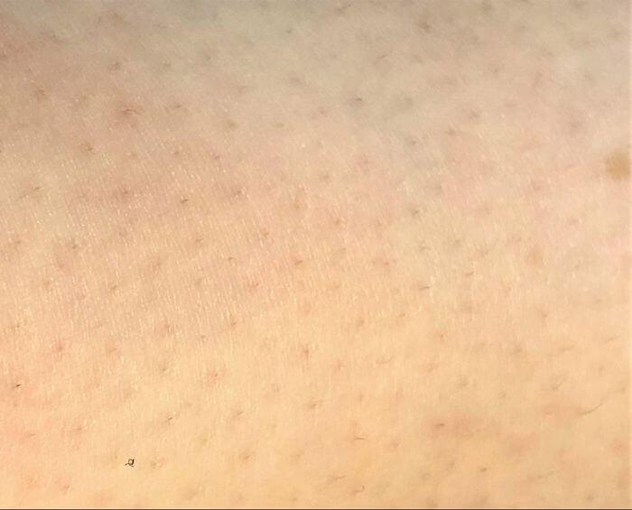 ケノン2回目の脱毛から1ヶ月経過した右足