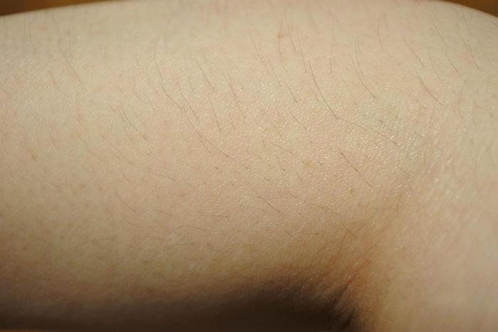 脱毛前の腕のムダ毛
