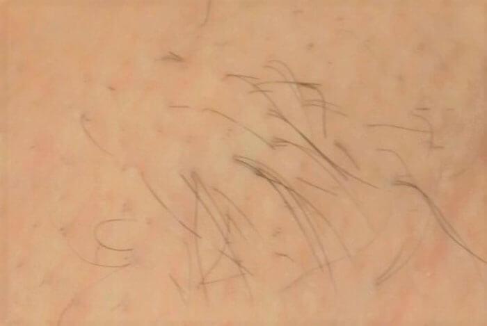 脱毛前のワキのムダ毛