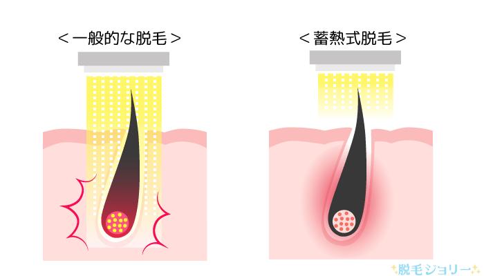 熱破壊式と蓄熱式の違い