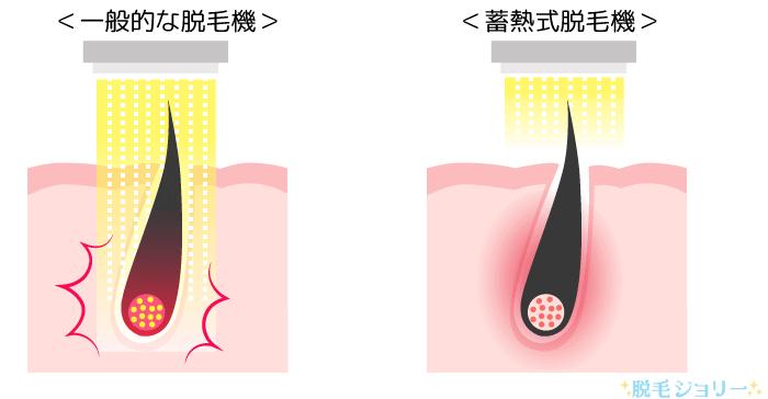 般的な脱毛機と蓄熱式脱毛機の痛みの違い
