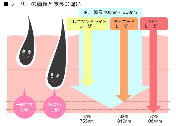 レーザーの波長の違い